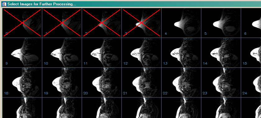 A medical imaging tool for selecting images for further processing.